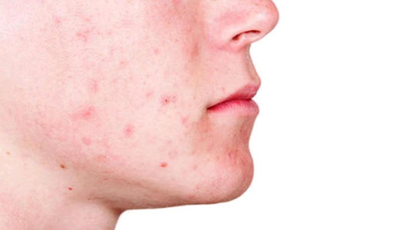 acne-hombre
