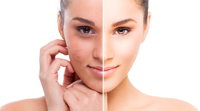 Peeling manchas y acné